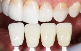 デジタルデータで正確な歯の色合わせ。